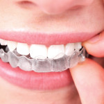 l'orthodontie adulte