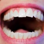 améliorer sourire